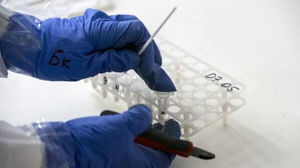 Анализ на коронавирус, взятый у пациента в приемном отделении госпиталя для зараженных коронавирусной инфекцией COVID-19 ФКЦ ВМТ ФМБА РФ