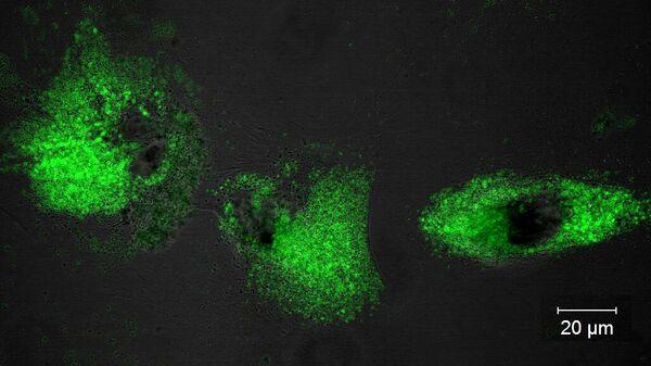 Ученые придумали, как подсветить места скопления кальция в организме