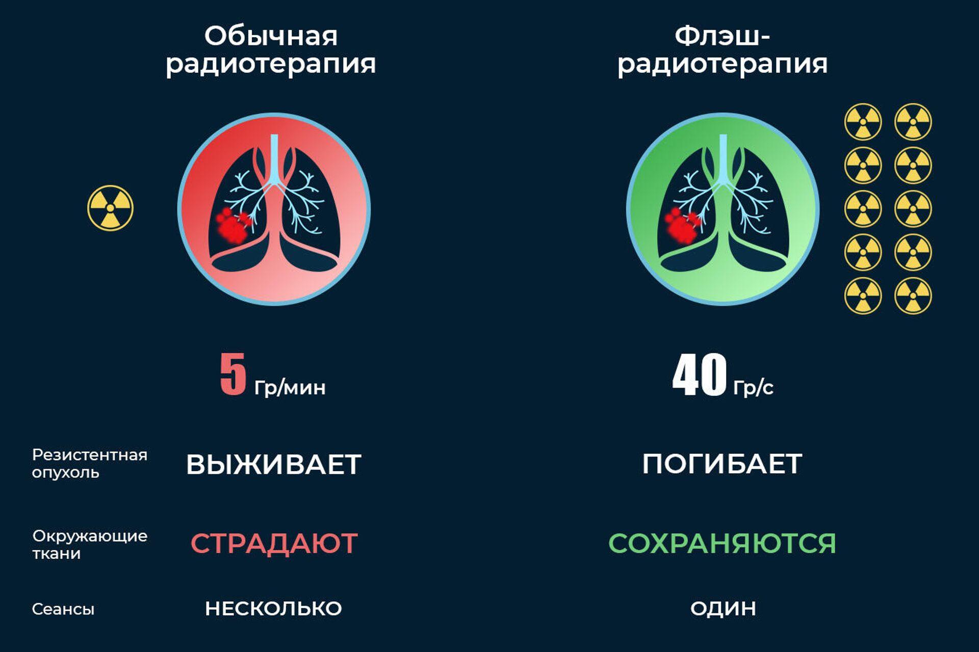 Сравнение флэш-радиотерапии и обычной радиотерапии - РИА Новости, 1920, 11.01.2021