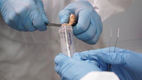 Отбор биологического материала для анализа на древние вирусы
