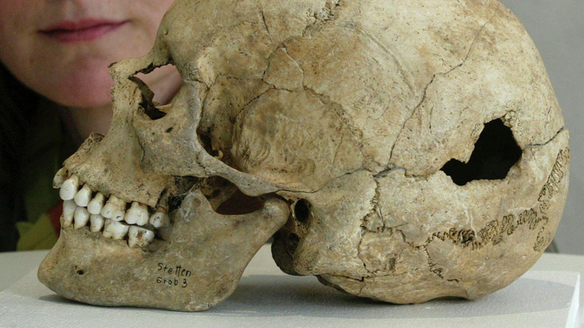 Тайна древних хирургов: зачем наши предки сверлили черепа наживую