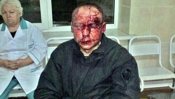 Учащийся ешивы Торат Хаим Шломо (Федор) Романовский после нападения на него в Московской области