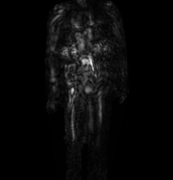 Радиоизображение макета пистолета под кожаной курткой
