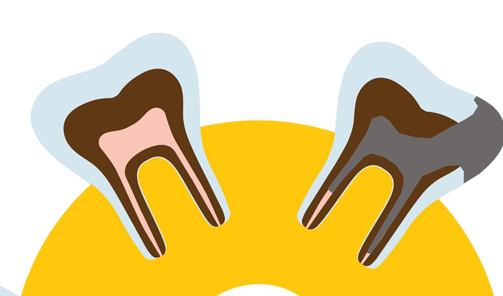 Потеря зубов и денег: если кариес не лечить