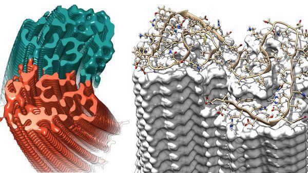 Структура нитей бета-амилоида