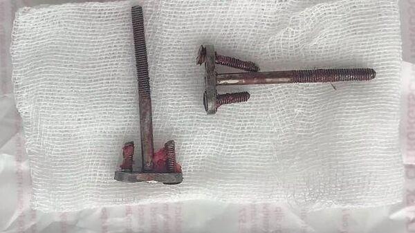 Самодельные металлические стержни, установленные жителю Бурятии в качестве зубных протезов