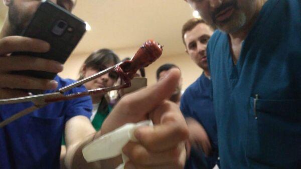 Резиновая пуля извлеченная из тела продюсера видеоагентства Ruptly