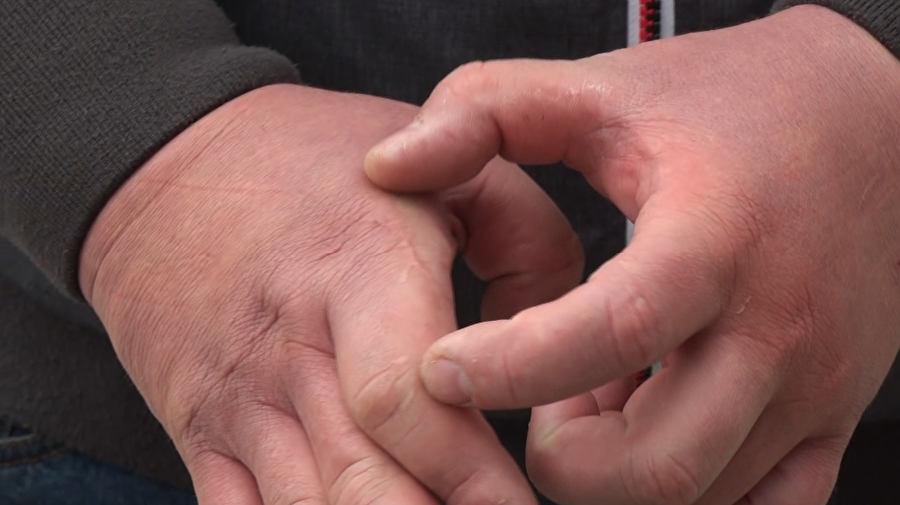 Филичкин показывает шрамы на руках
