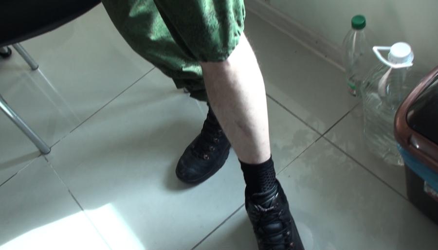 Михаил Шубин показывает шрамы от пыток