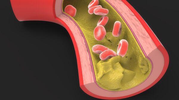Пораженная артерия с жировыми отложениями