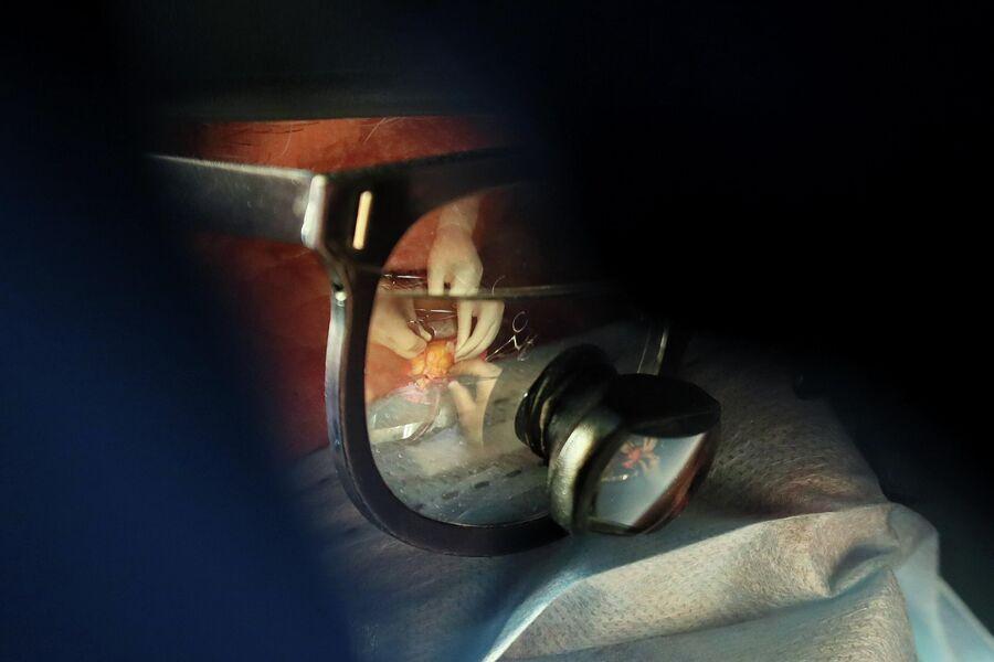 Операция через хирургическое увеличительное стекло