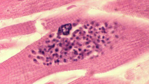Паразит токсоплазма (Toxoplasma gondii) внутри клетки