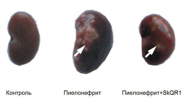 Воздействие антиоксиданта SkQR1 на почку, пораженную пиелонефритом