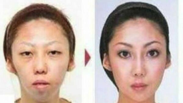 Жена китайца Цзянь Фенга до и после операции